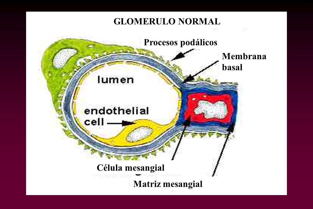 GLOMERULO NORMAL Procesos podálicos Membrana basal Célula mesangial Matriz mesangial