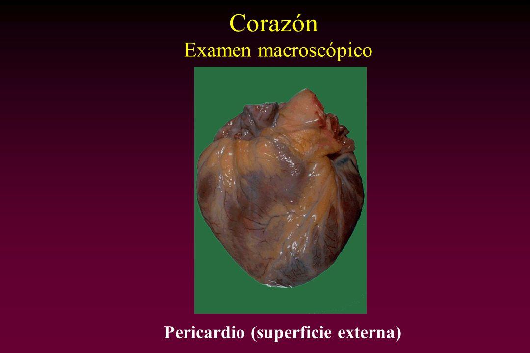 Pericardio (superficie externa)