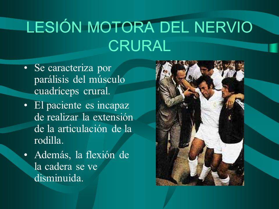 LESIÓN MOTORA DEL NERVIO CRURAL