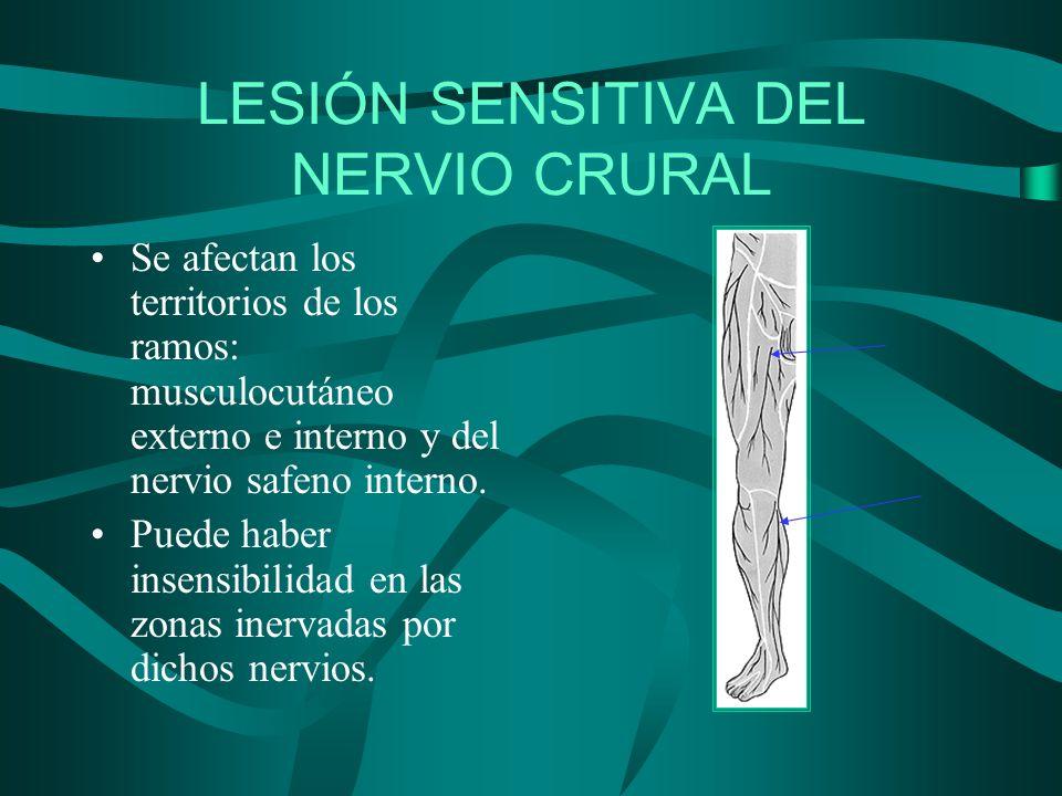 LESIÓN SENSITIVA DEL NERVIO CRURAL