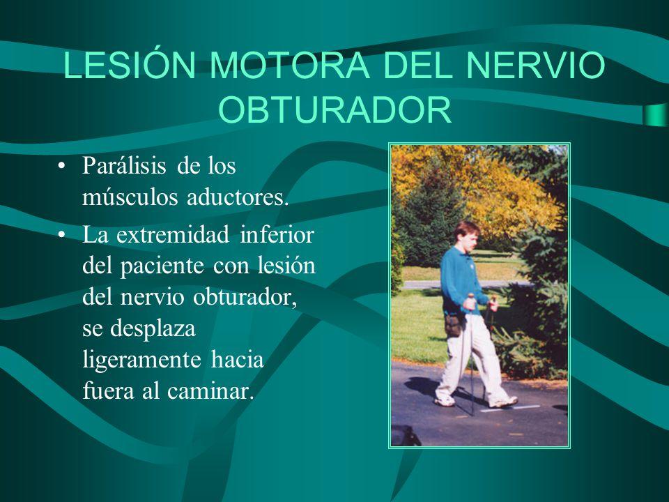 LESIÓN MOTORA DEL NERVIO OBTURADOR