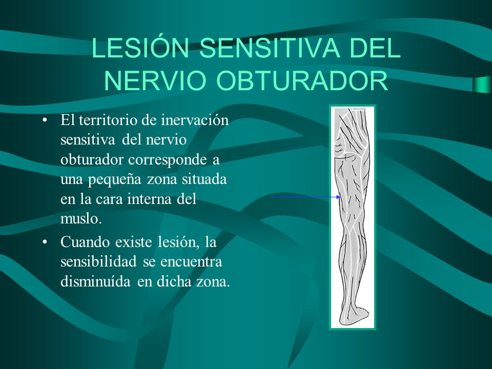 LESIÓN SENSITIVA DEL NERVIO OBTURADOR