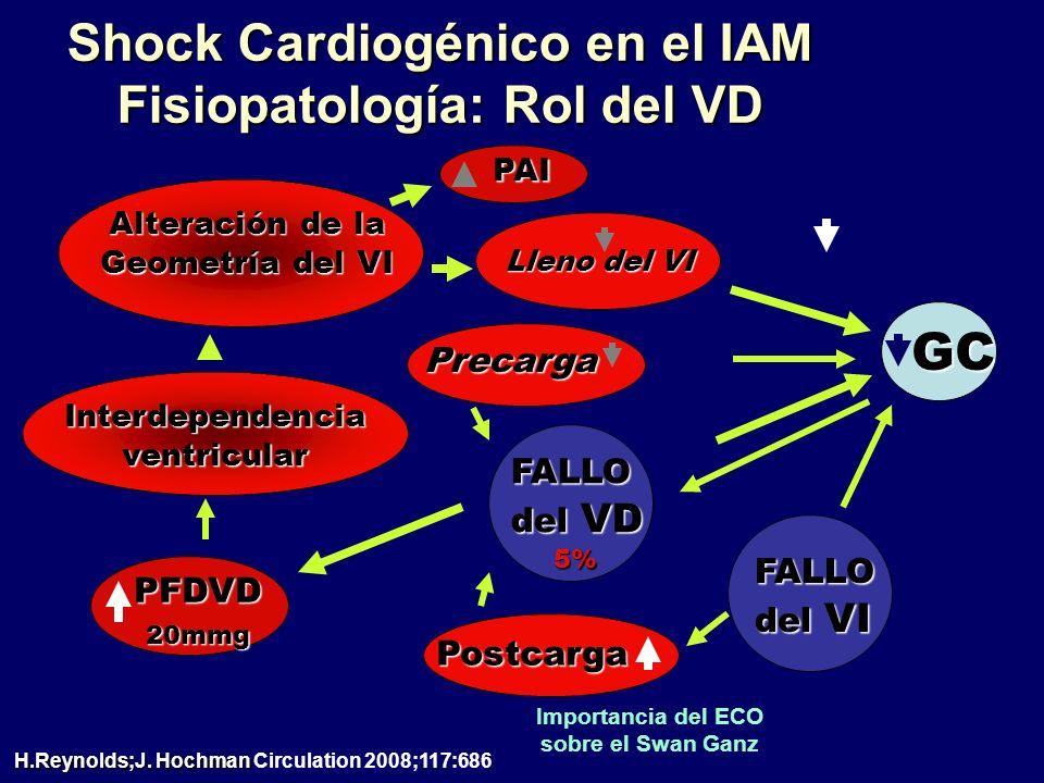 Shock Cardiogénico en el IAM Fisiopatología: Rol del VD