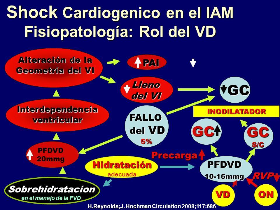 Shock Cardiogenico en el IAM Fisiopatología: Rol del VD