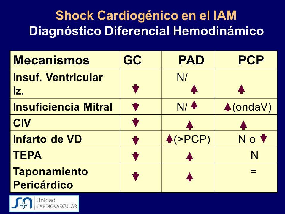 Shock Cardiogénico en el IAM Diagnóstico Diferencial Hemodinámico