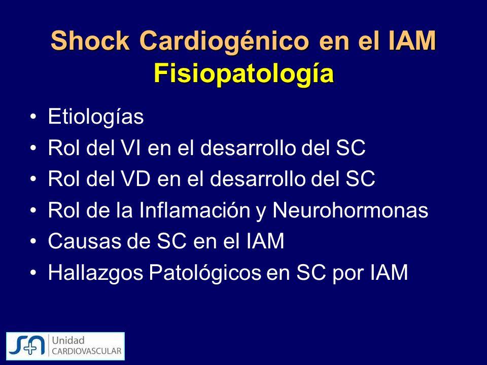 Shock Cardiogénico en el IAM Fisiopatología