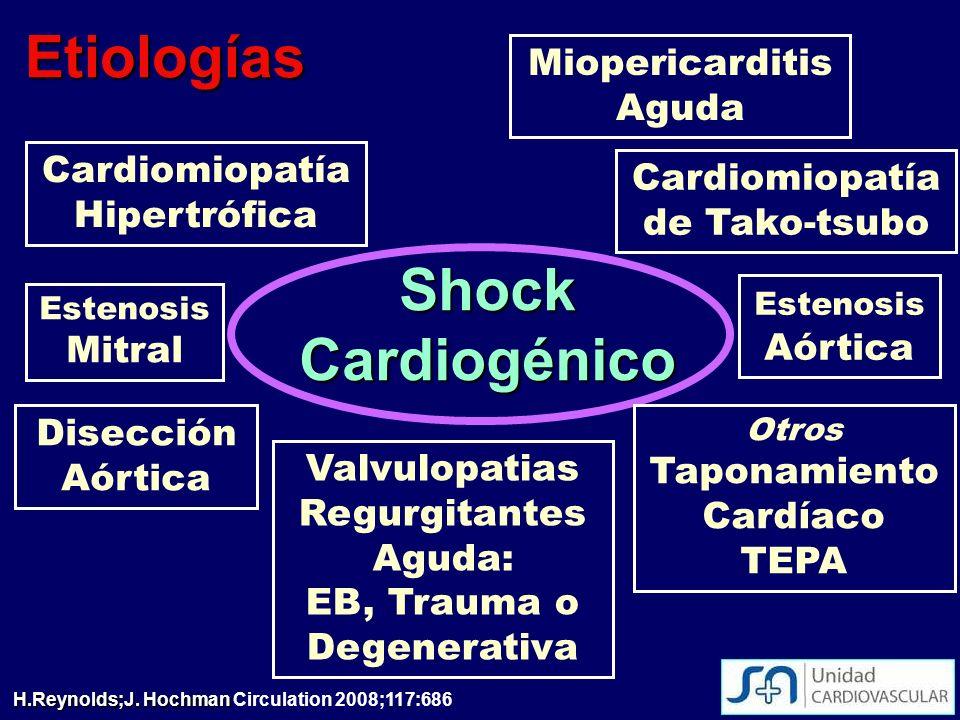 Etiologías Shock Cardiogénico Miopericarditis Aguda