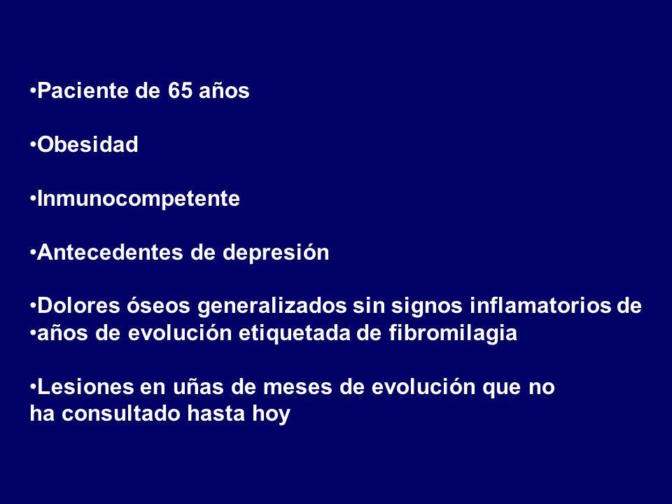 Paciente de 65 años Obesidad. Inmunocompetente. Antecedentes de depresión. Dolores óseos generalizados sin signos inflamatorios de.