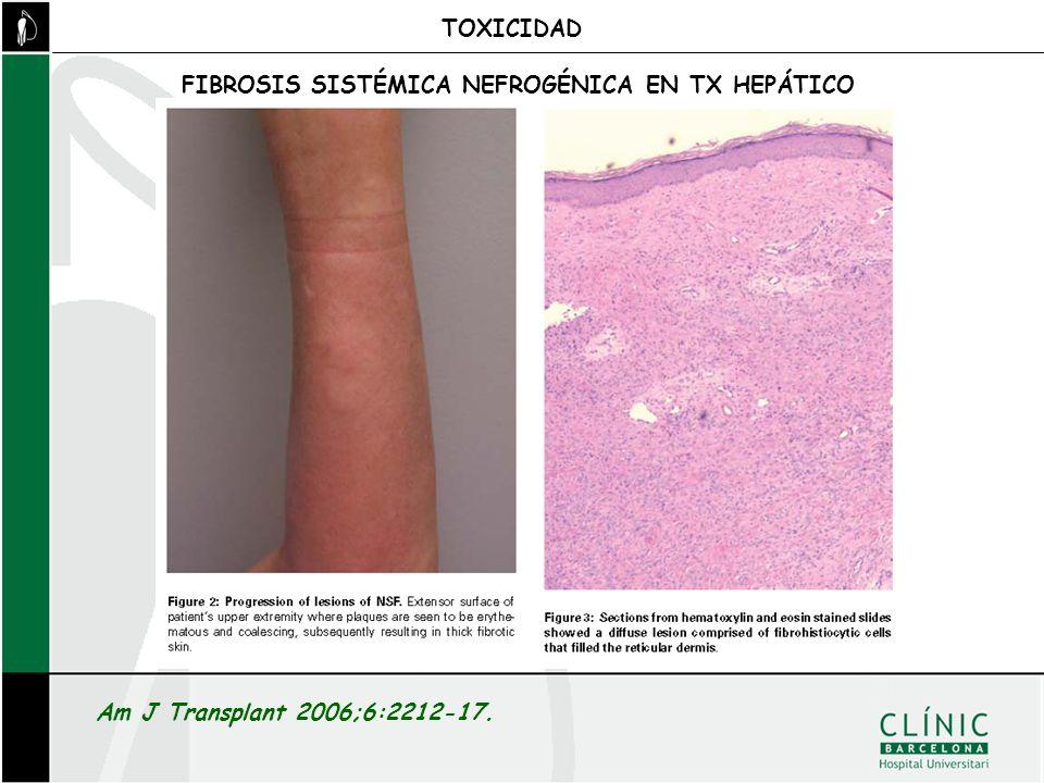 TOXICIDAD FIBROSIS SISTÉMICA NEFROGÉNICA EN TX HEPÁTICO Am J Transplant 2006;6:2212-17.