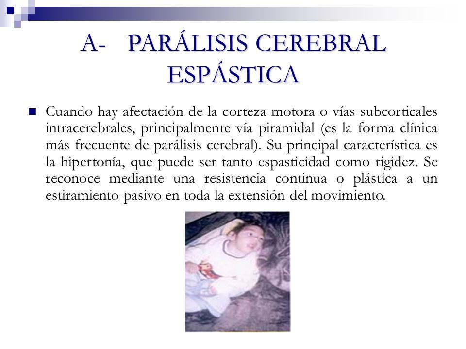 A- PARÁLISIS CEREBRAL ESPÁSTICA