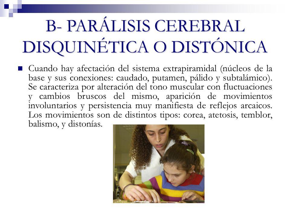 B- PARÁLISIS CEREBRAL DISQUINÉTICA O DISTÓNICA