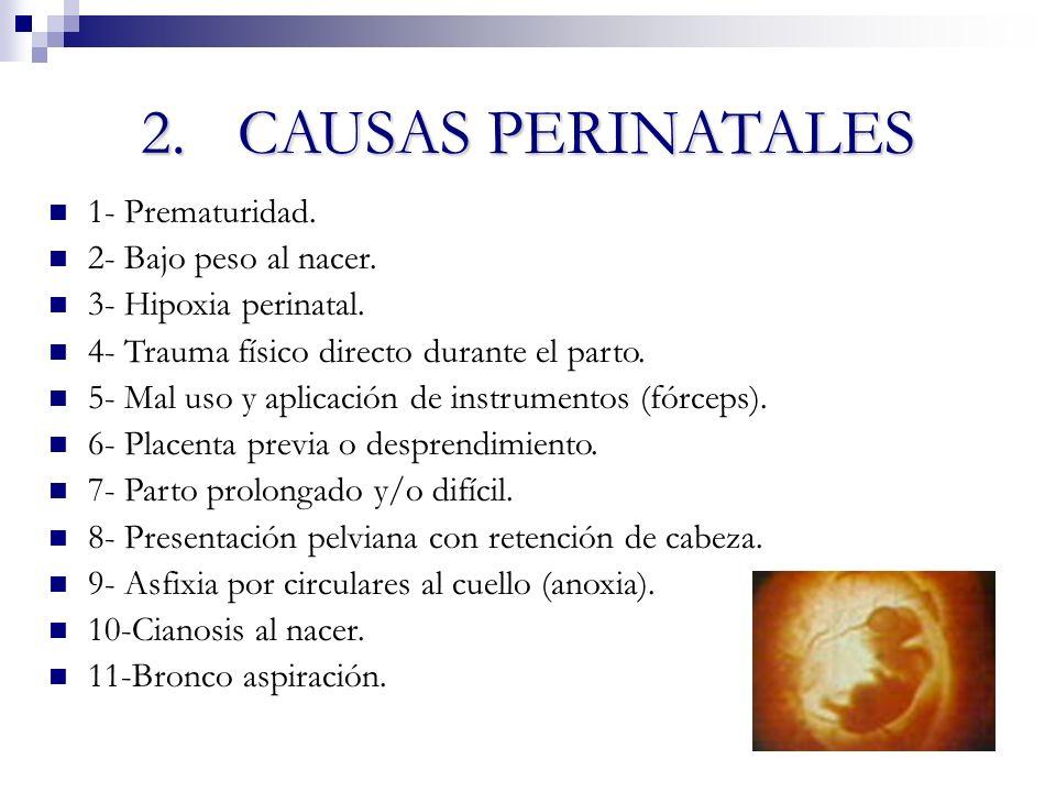2. CAUSAS PERINATALES 1- Prematuridad. 2- Bajo peso al nacer.