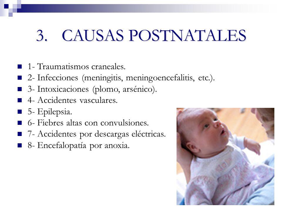 3. CAUSAS POSTNATALES 1- Traumatismos craneales.