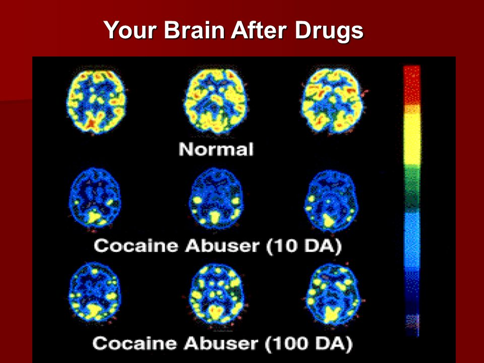 Your Brain After Drugs Slide 8: Long-term effects of drug abuse.