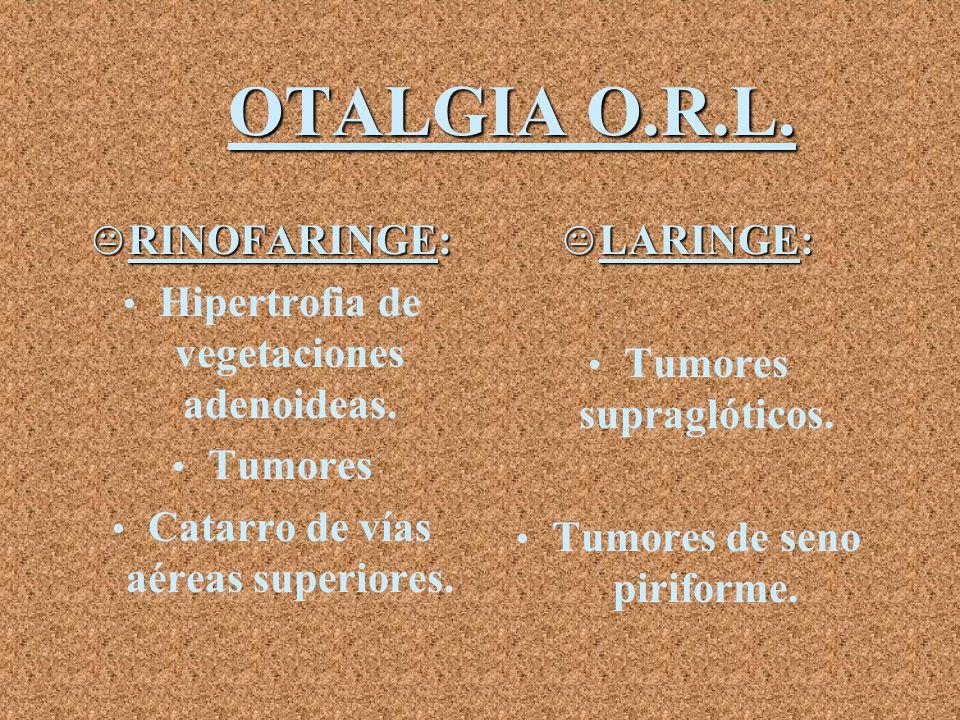 OTALGIA O.R.L. RINOFARINGE: Hipertrofia de vegetaciones adenoideas.