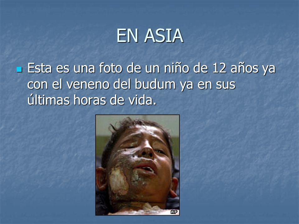 EN ASIA Esta es una foto de un niño de 12 años ya con el veneno del budum ya en sus últimas horas de vida.