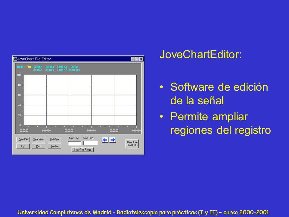 Software de edición de la señal Permite ampliar regiones del registro