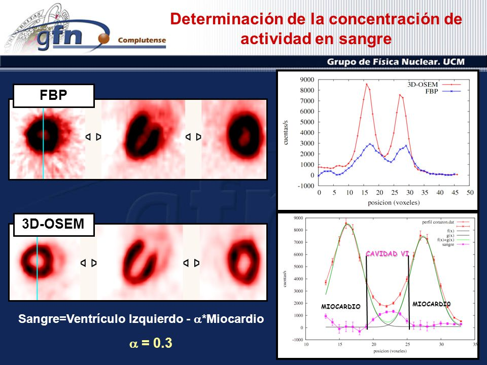 Determinación de la concentración de actividad en sangre