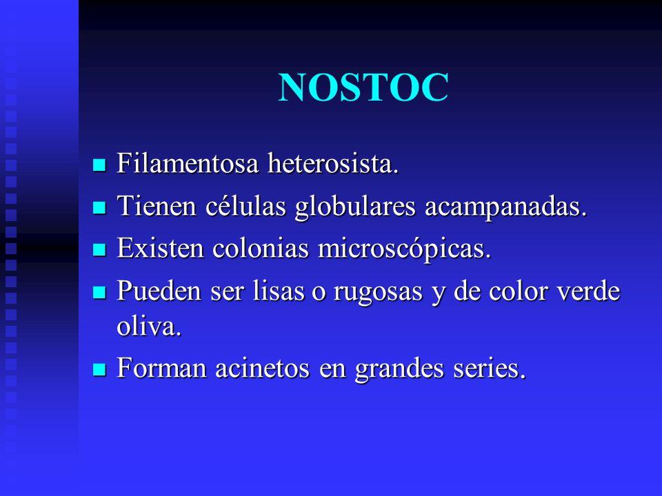 NOSTOC Filamentosa heterosista. Tienen células globulares acampanadas.