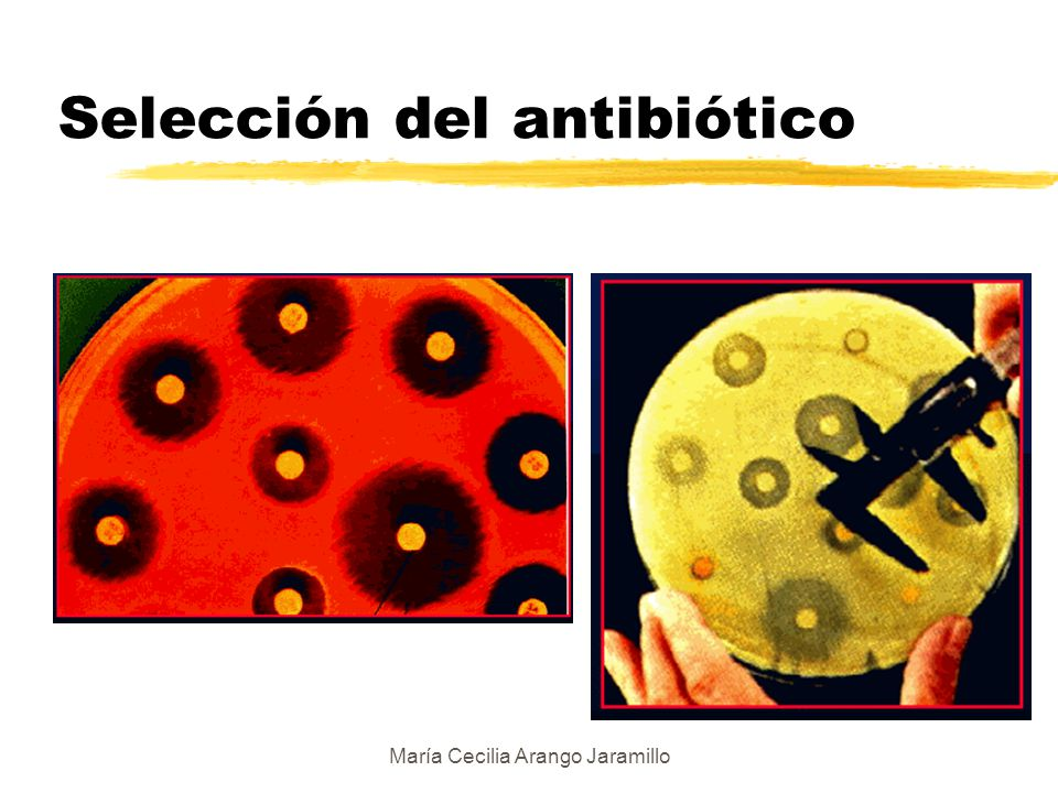 Selección del antibiótico