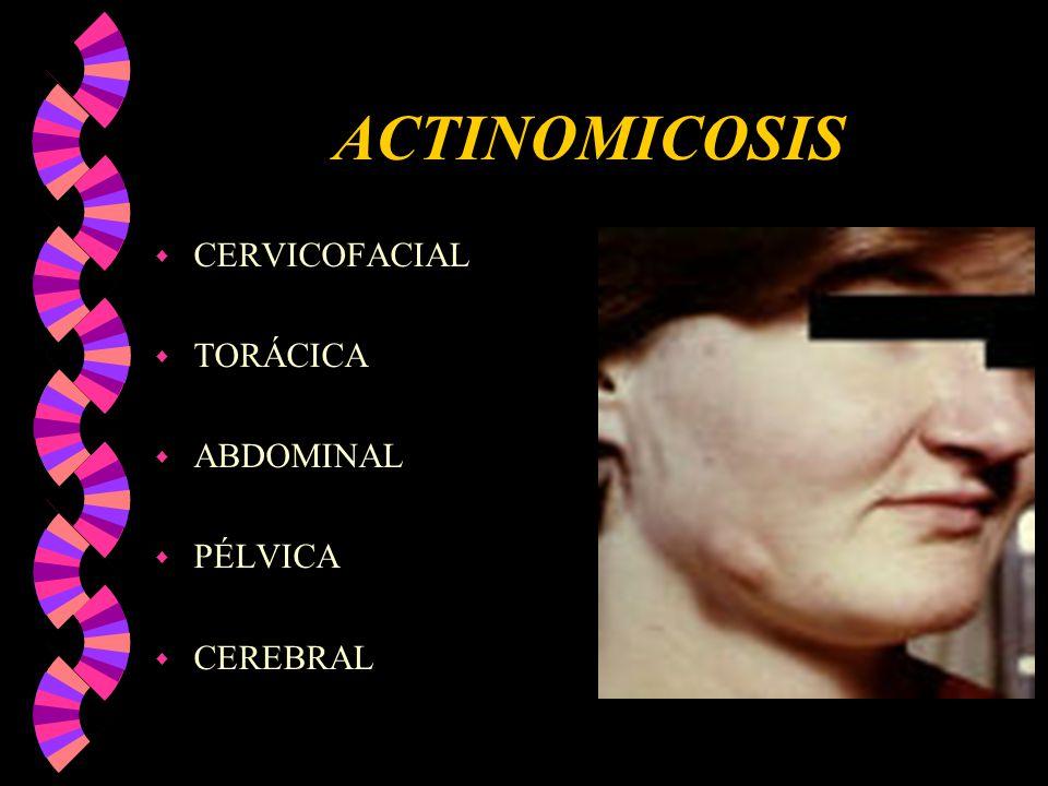 ACTINOMICOSIS CERVICOFACIAL TORÁCICA ABDOMINAL PÉLVICA CEREBRAL