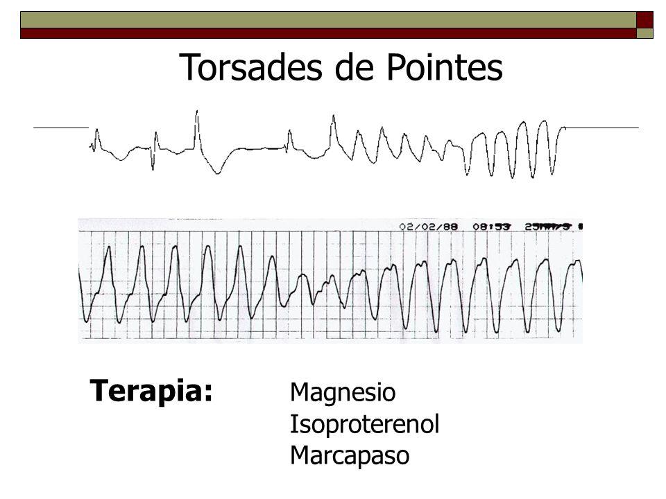 Torsades de Pointes Terapia: Magnesio Isoproterenol Marcapaso