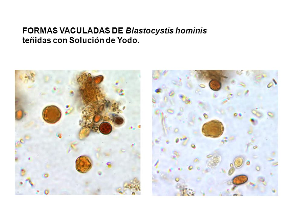 FORMAS VACULADAS DE Blastocystis hominis teñidas con Solución de Yodo.