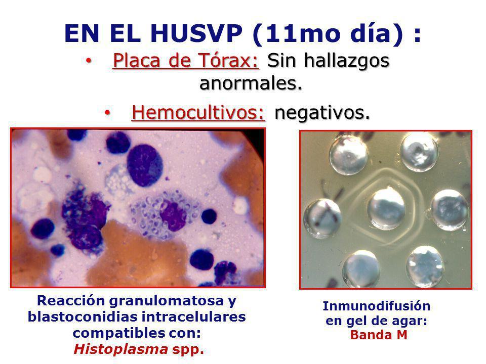EN EL HUSVP (11mo día) : Placa de Tórax: Sin hallazgos anormales.
