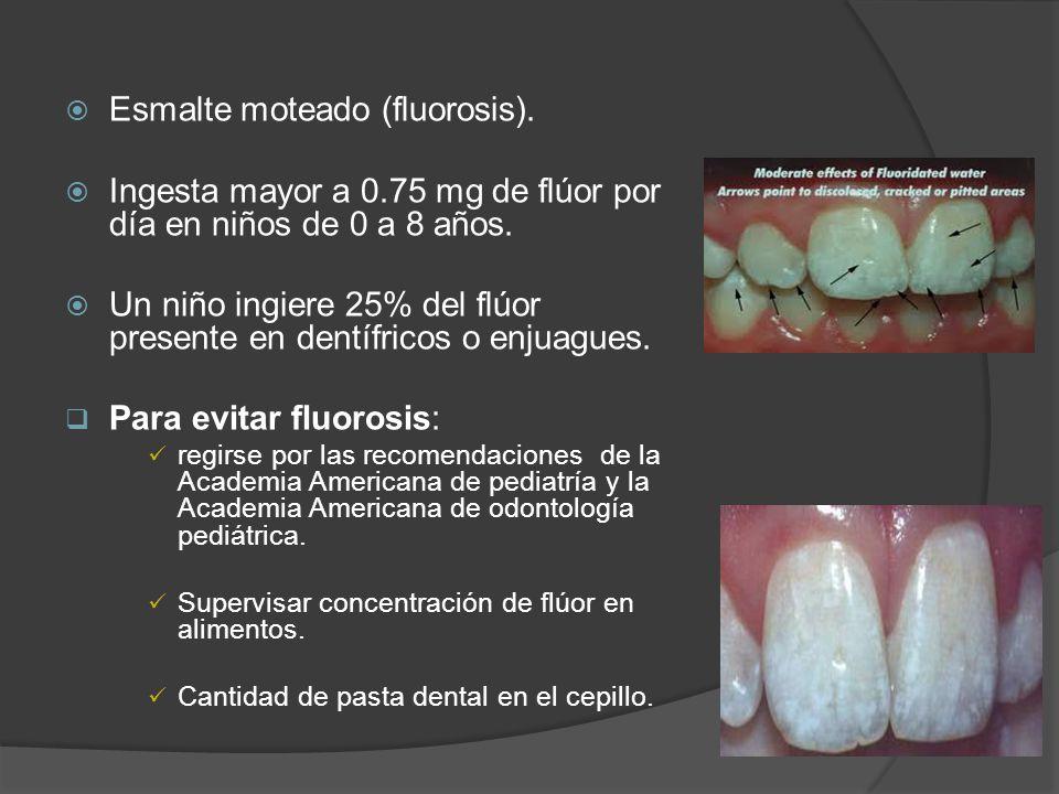 Esmalte moteado (fluorosis).