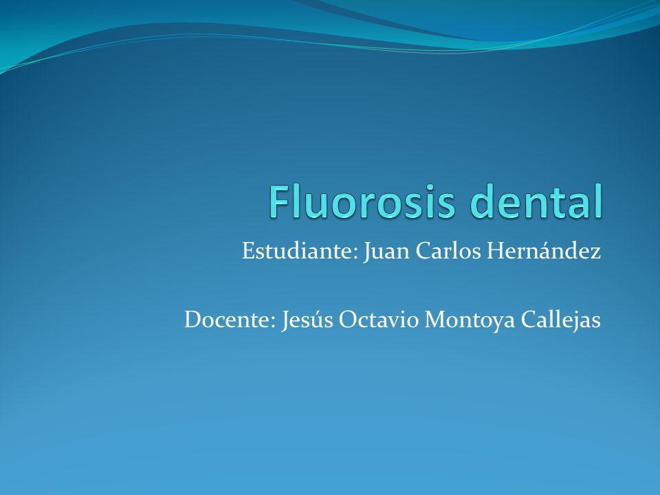 Fluorosis dental Estudiante: Juan Carlos Hernández