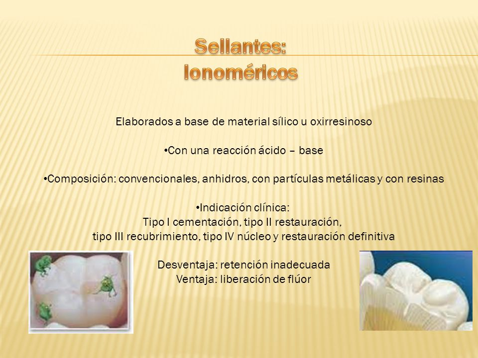 Sellantes: Ionoméricos