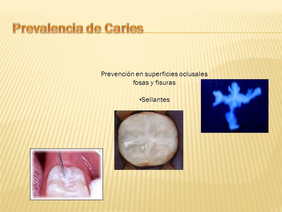 Prevención en superficies oclusales