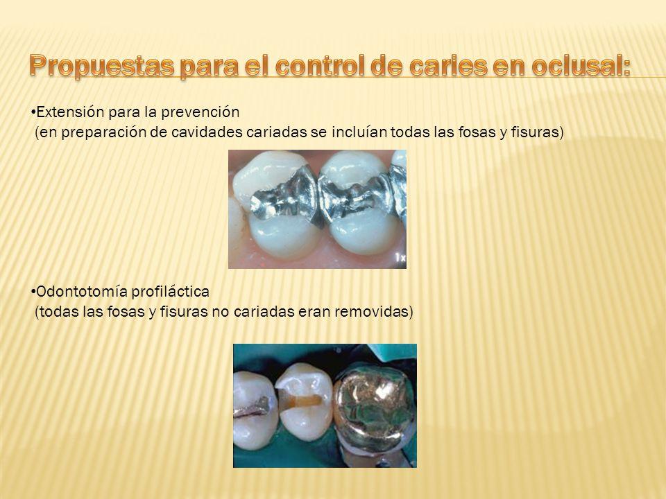 Propuestas para el control de caries en oclusal: