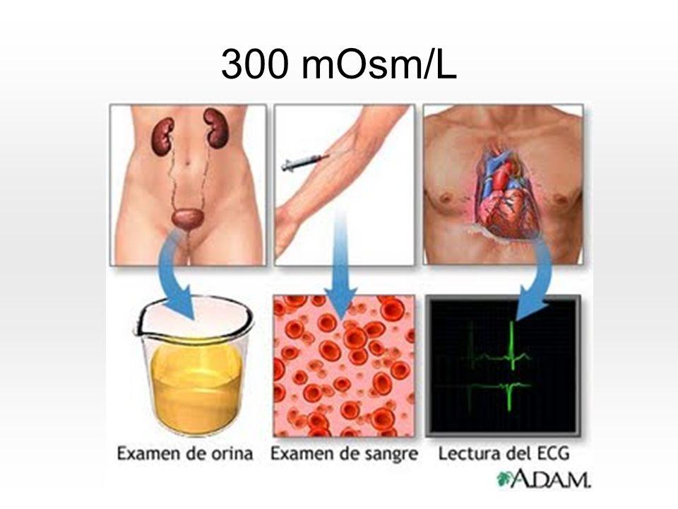 300 mOsm/L