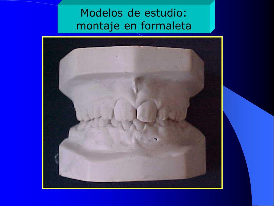 Modelos de estudio: montaje en formaleta