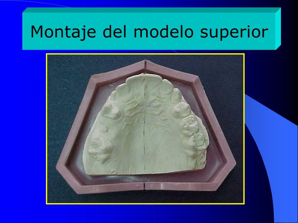Montaje del modelo superior