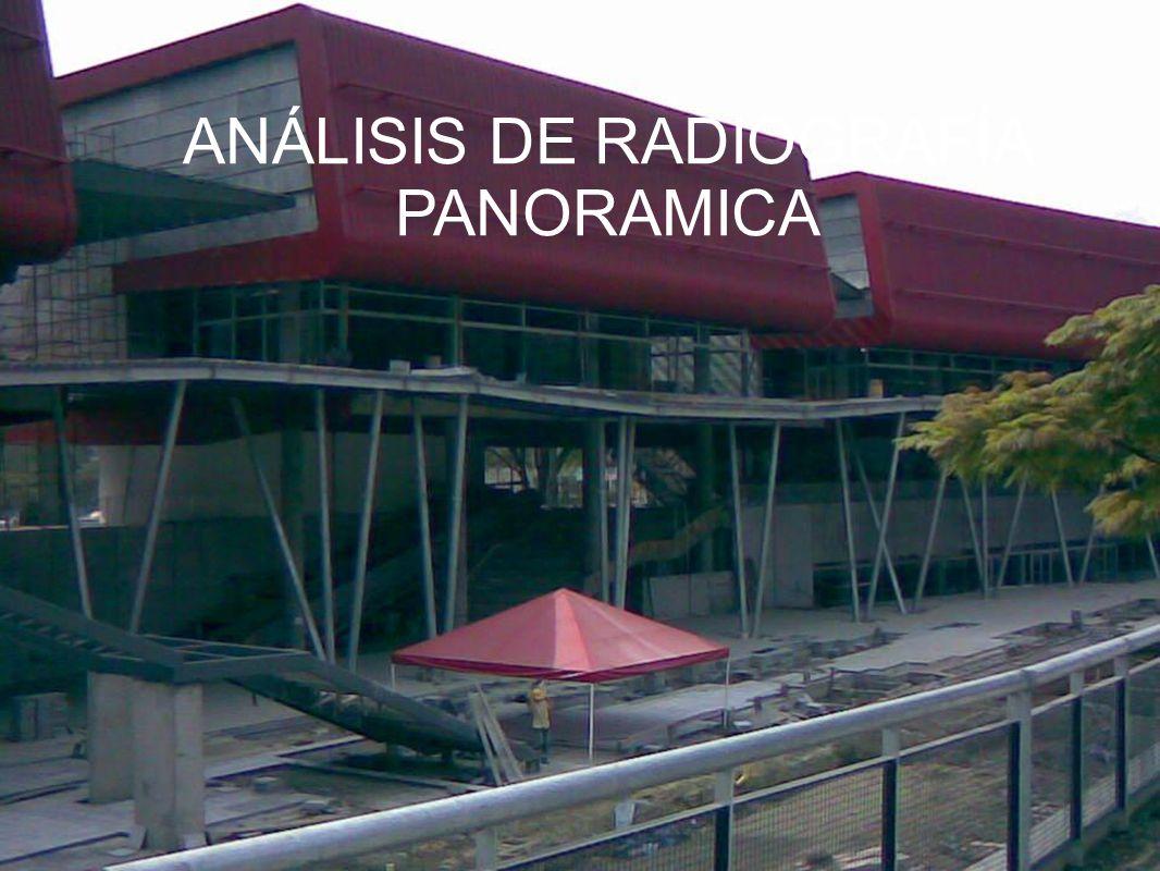 ANÁLISIS DE RADIOGRAFÍA PANORAMICA