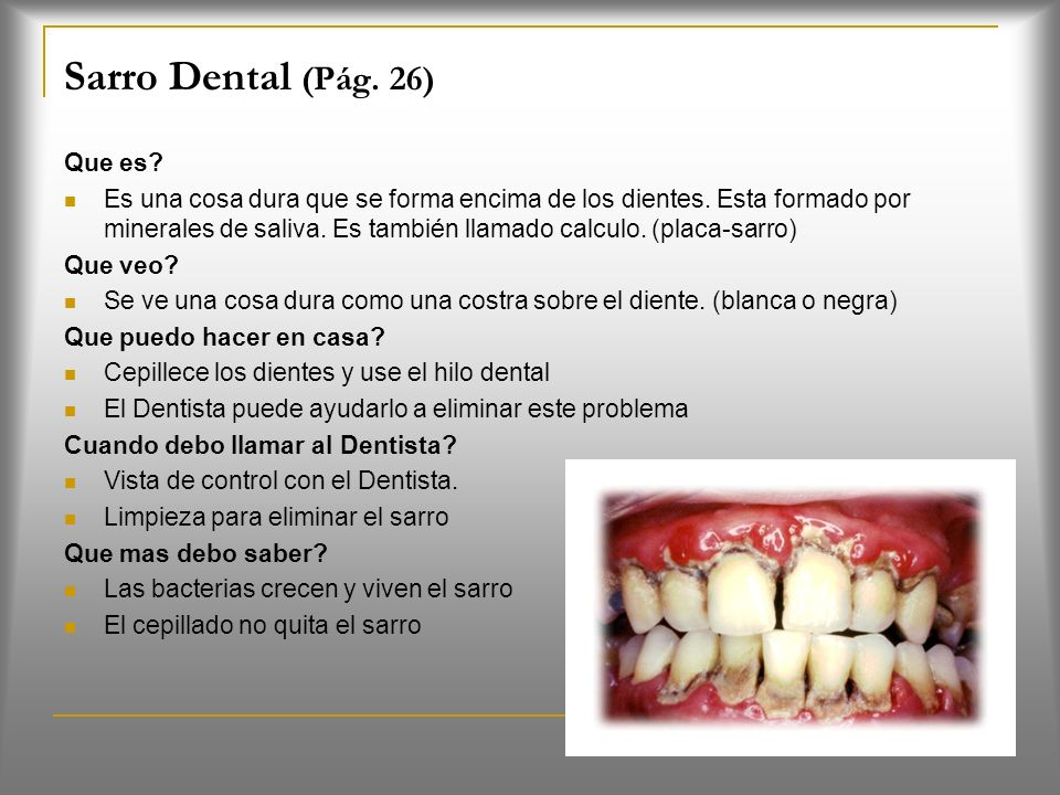 Sarro Dental (Pág. 26) Que es