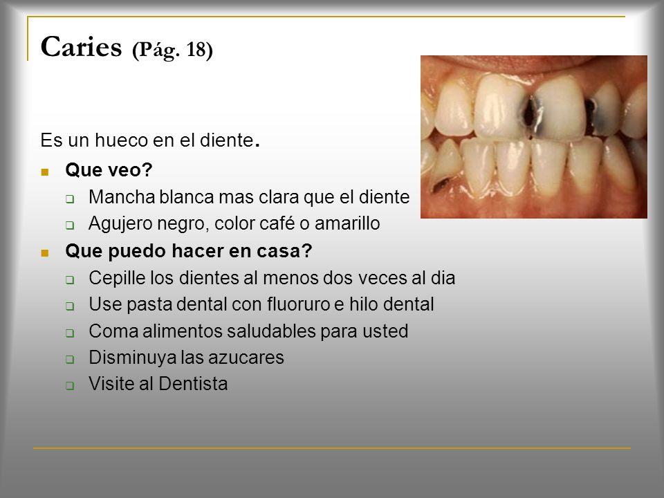Caries (Pág. 18) Es un hueco en el diente. Que veo