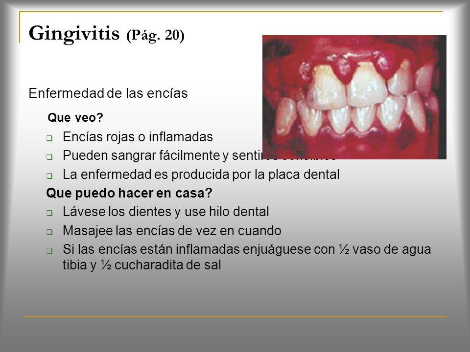 Gingivitis (Pág. 20) Que veo Enfermedad de las encías