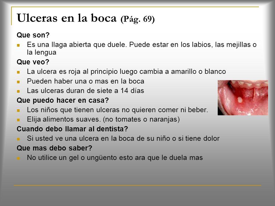 Ulceras en la boca (Pág. 69)