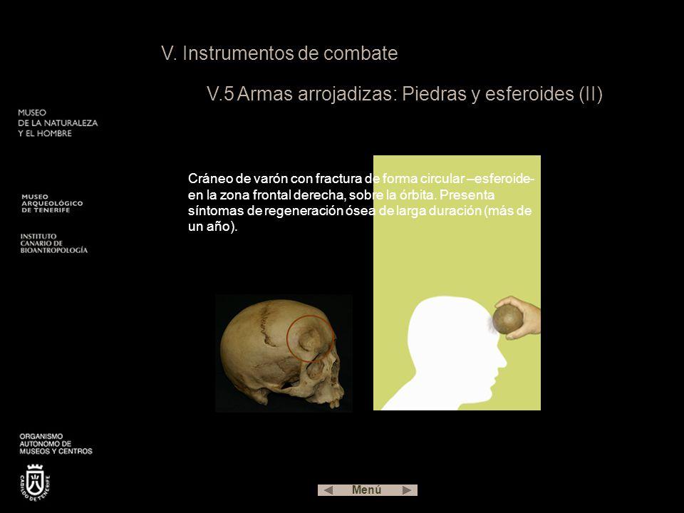 V. Instrumentos de combate V