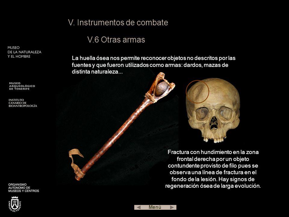 V. Instrumentos de combate V.6 Otras armas