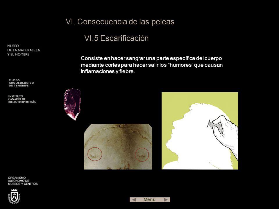 VI. Consecuencia de las peleas VI.5 Escarificación