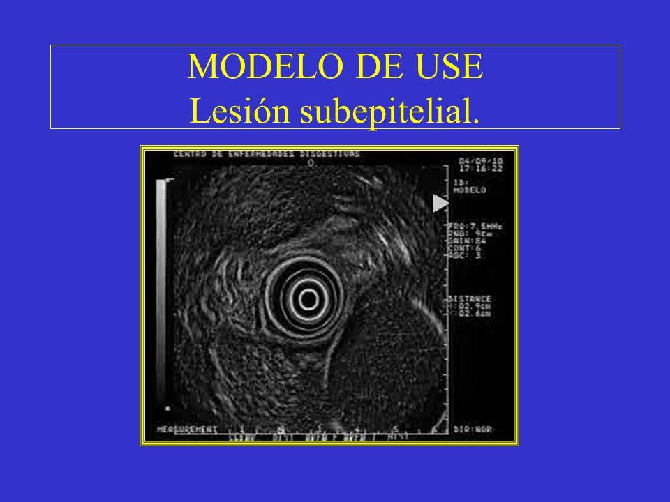 MODELO DE USE Lesión subepitelial.