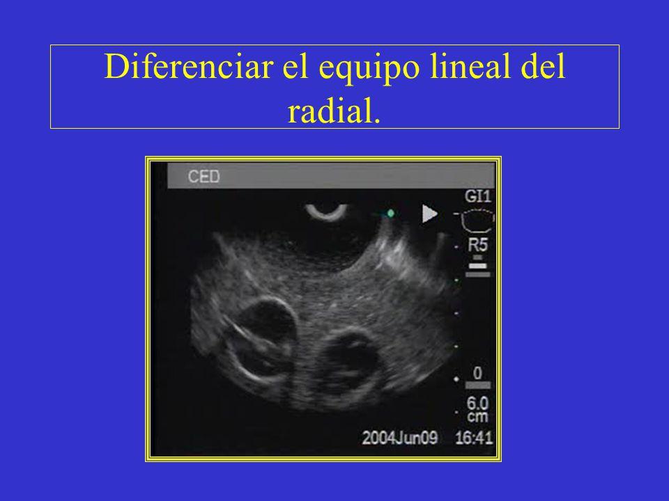 Diferenciar el equipo lineal del radial.