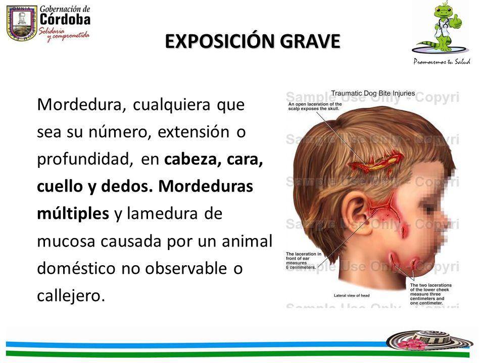EXPOSICIÓN GRAVE Mordedura, cualquiera que sea su número, extensión o