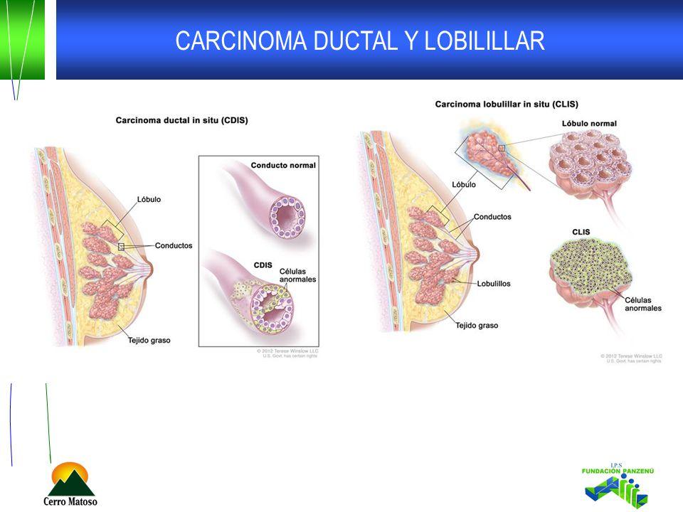 CARCINOMA DUCTAL Y LOBILILLAR