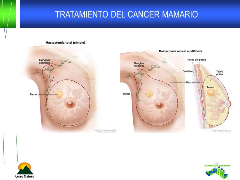TRATAMIENTO DEL CANCER MAMARIO