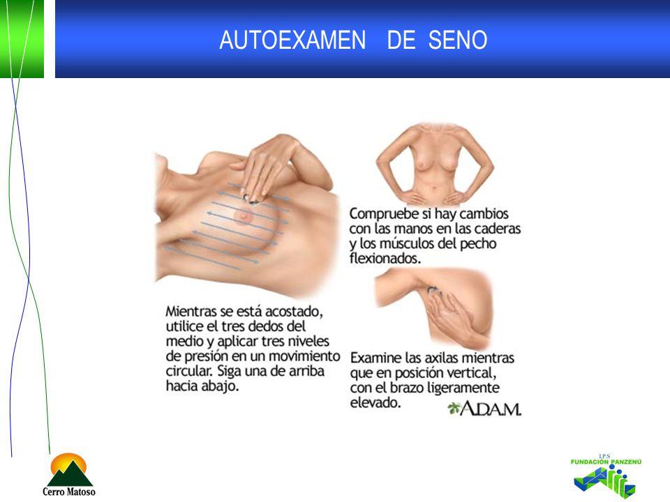 AUTOEXAMEN DE SENO